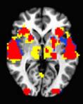 De hersenen van een Engelstalige moedertaalspreker die Hebreeuws leert: Rood zijn gebieden die actief zijn tijdens het spreken van Engels en Hebreeuws, blauw alleen tijdens Engels en geel alleen tijdens Hebreeuws.  Daniel Sharoh, et al., (2014, August)*. Neural Correlates of Emerging Readers in L2: A Bi-directional Approach Using Hebrew and English.* Poster session at Society for the Neurobiology of Language,  Amsterdam, NL. NIH Grant HD-067364