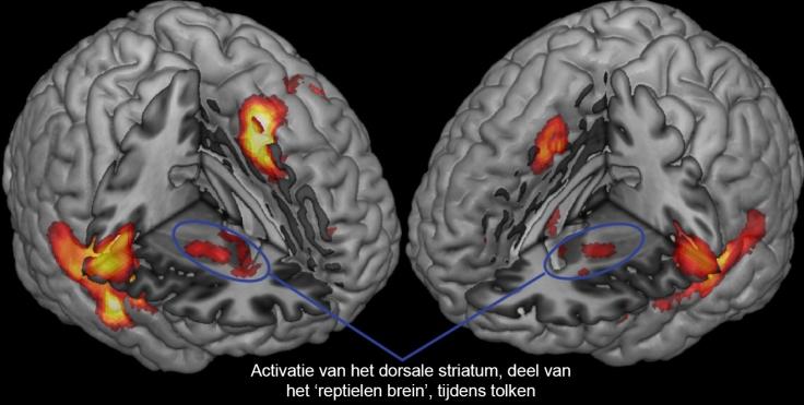 brainactivityalexisNL